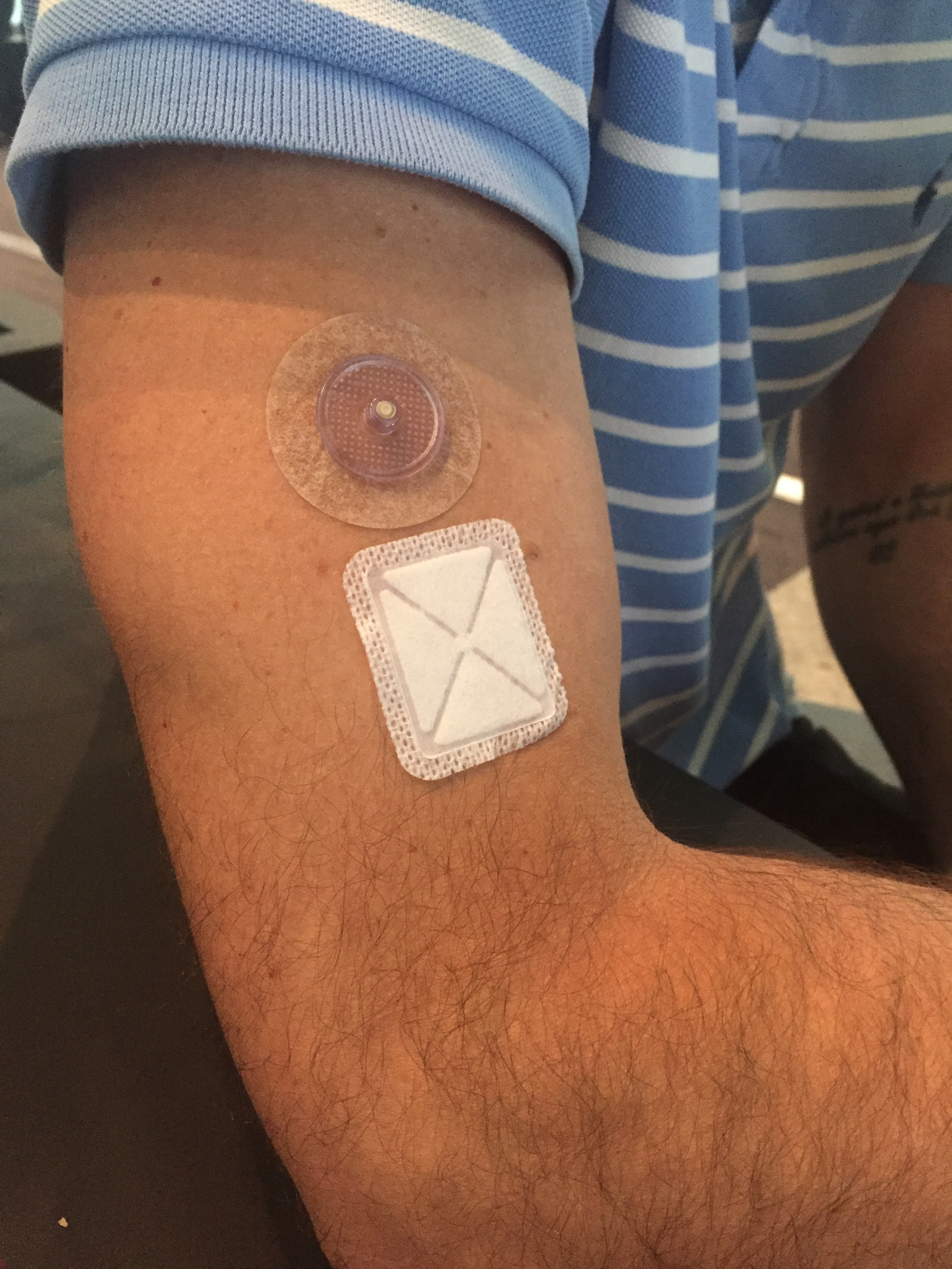 Cellnovo Mobile Insulin Pump Launches In Australia Type